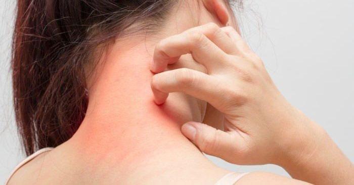 Bạn bị ngứa khắp người, càng gãi càng ngứa ? Hãy tìm hiểu 13 nguyên nhân sau
