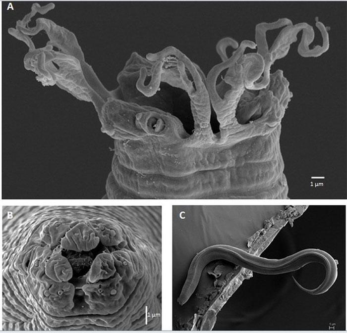 Cận cảnh tuyến trùng dưới kính hiển vi điện tử quét (SEM).