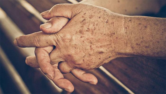 Tuổi tác là một trong những nguyên nhân gây làm xuất hiện đốm đen trên da.