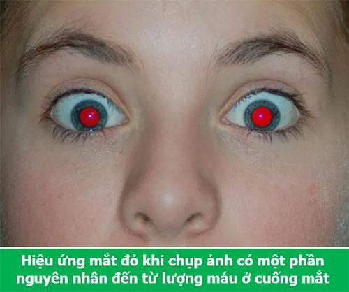 Hiệu ứng mắt đỏ khi chụp ảnh