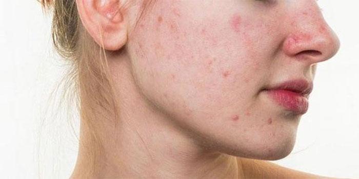 Hãy đến bác sĩ da liễu để bạn có được lời khuyên tốt nhất trong việc điều trị làn da sần sùi.
