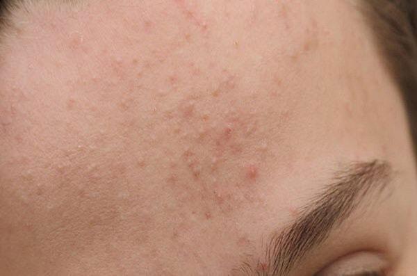 Đặc biệt vào những mùa khô hanh, những bạn sở hữu làn da khô rất dễ gặp phải tình trạng này.