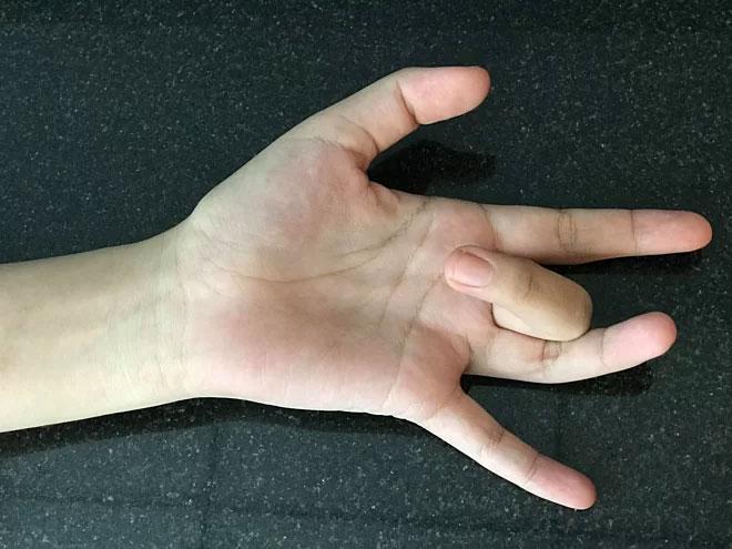 Người bệnh có triệu chứng không thể tự duỗi ngón tay ra sau khi gập.