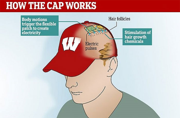 Loại mũ này có hiệu quả ngang với các loại thuốc chống hói