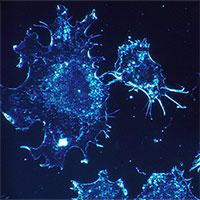 """Phát hiện yếu tố ngay trong cơ thể khiến tế bào ung thư """"tự sát"""""""