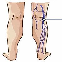 Thuyên tắc huyết khối tĩnh mạch là gì?