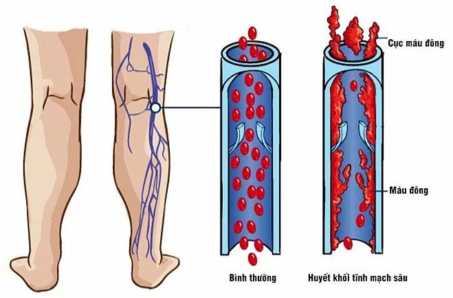 Bệnh thường bắt đầu ở các cục máu đông trong tĩnh mạch cẳng chân hoặc tay.
