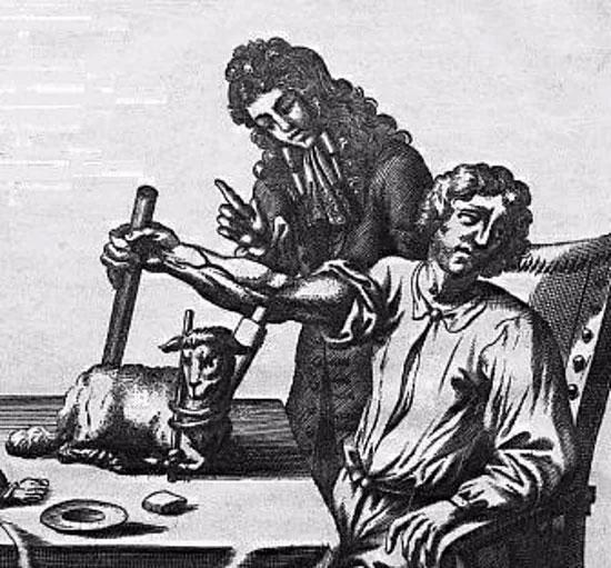 Jean-Baptiste Denis tiến hành truyền máu cừu cho bệnh nhân