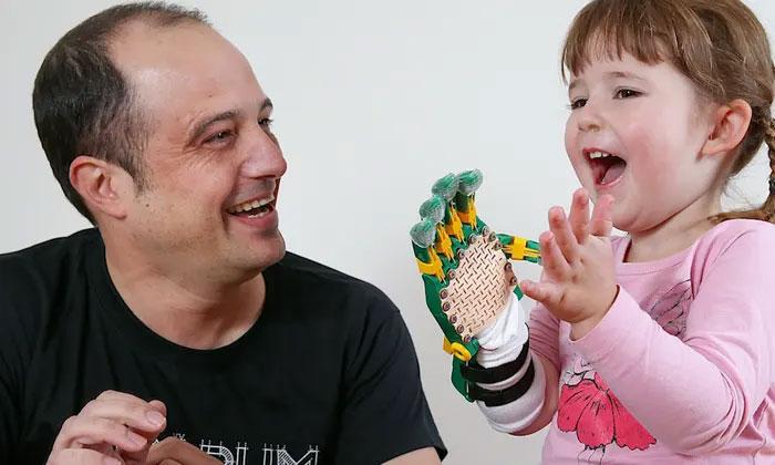 Cánh tay giả mà Mat Bowtell làm ra hoàn toàn có thể cử động linh hoạt, không khác gì bàn tay thật.