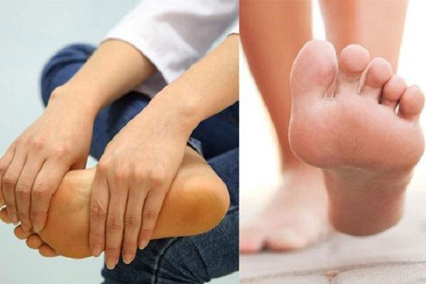 Bệnh teo cơ Mác khiến vòm bàn chân cao lên và gây yếu cơ, khiến việc đi lại khó khăn.