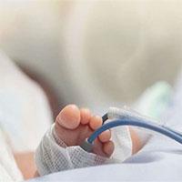 Em bé được sinh ra với một phần của bộ não bên ngoài hộp sọ được cứu sống