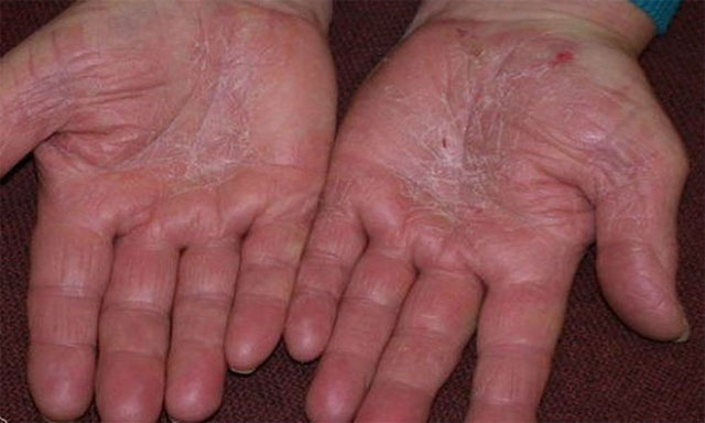 Á sừng làm xuất hiện bong vảy da không hoàn toàn, thường xảy ra ở bàn tay, bàn chân.