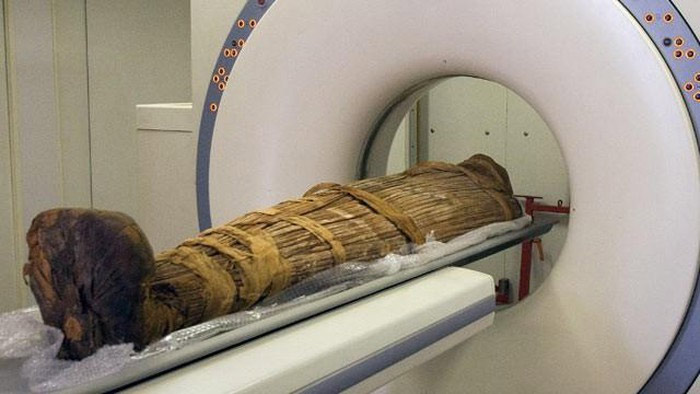 Ba trong số 5 xác ướp cổ xưa trên được cho là tử vong vì viêm phổi, 1 người được cho là chết vì suy thận