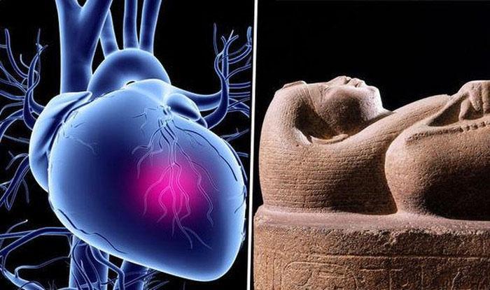 Người cổ đại có các động mạch bị tắc nhiều hơn so với chúng ta từng biết