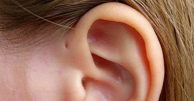 Lỗ nhỏ trên vành tai là đặc điểm di truyền rất ít người sở hữu.