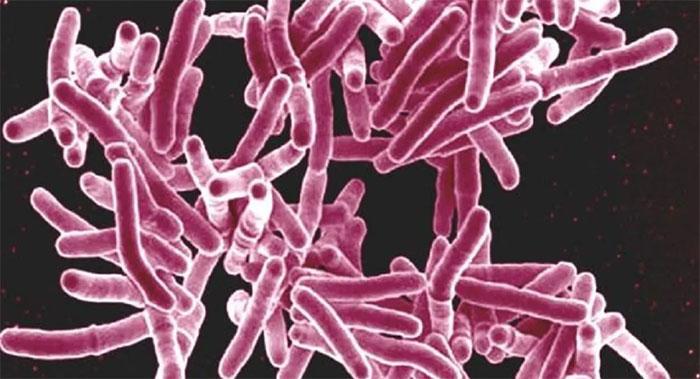 Vật liệu cấy ghép mới của các nhà khoa học đến từ Nga được cho có khả năng tiêu diệt hàng loạt loại vi khuẩn.