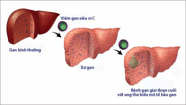 Cần tìm hiểu cách điều trị viêm gan C đúng đắn để nhanh chóng khỏi bệnh.