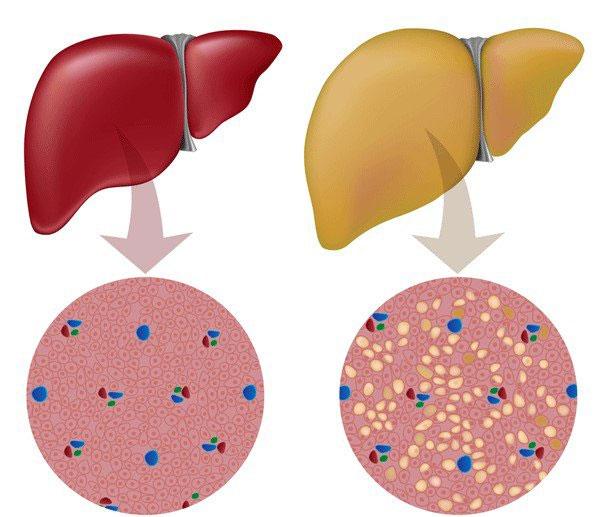Gan nhiễm mỡ độ 2: triệu chứng và cách phòng ngừa