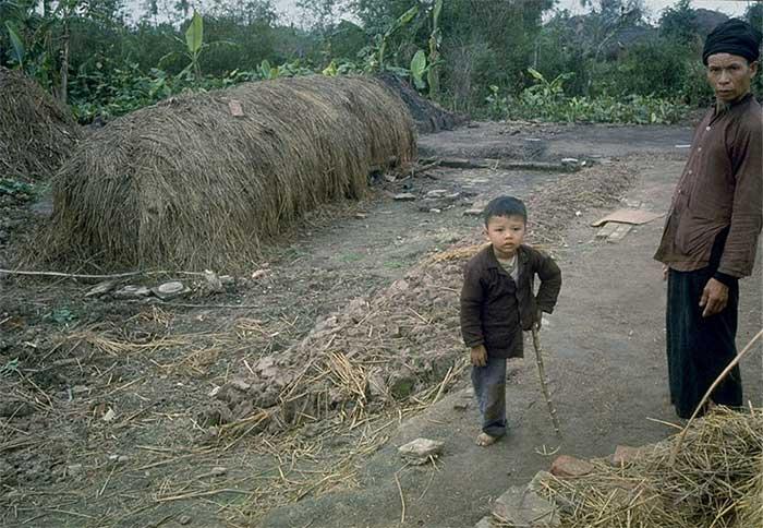 Một em bé ở khu vực ngoại ô bị mất chân do bom Mỹ đứng cùng bố trên đường làng.