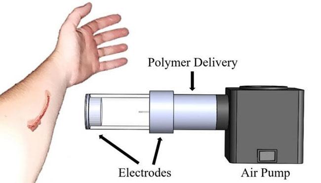 Hoạt động của thiết bị phun băng y tế giống với bình xịt phun sơn dưới áp lực