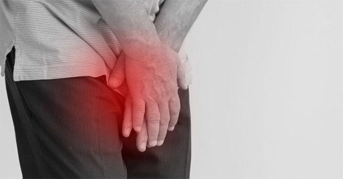 Viêm niệu đạo ở nam giới là một căn bệnh phổ biến, dễ mắc phải.