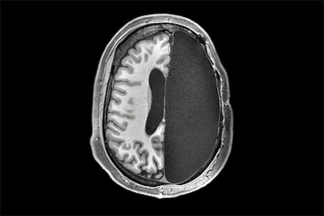 Não bộ có thể thích nghi và hoạt động sau phẫu thuật cắt bán cầu.