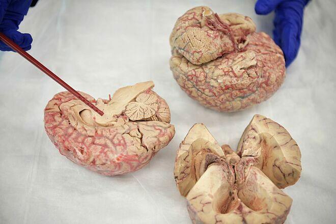 Ngân hàng não cho phép các nhà khoa học phân tích mô não người châu Á.