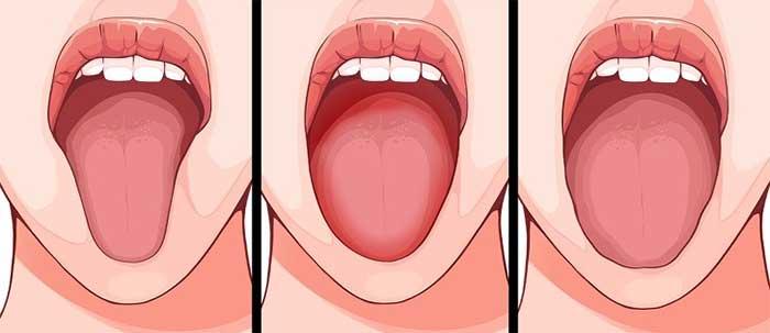 Hình thức của lưỡi