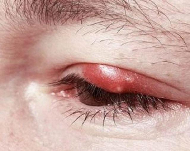 Các dấu hiệu khi nổi mụn ở mí mắt trên khác nhau giữa mỗi người.