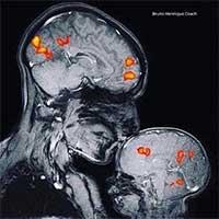 Điều kỳ diệu qua hình ảnh chụp cộng hưởng từ MRI của em bé khi ở bên mẹ