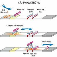 Que test HIV bị cắt sẽ làm sai lệch kết quả xét nghiệm