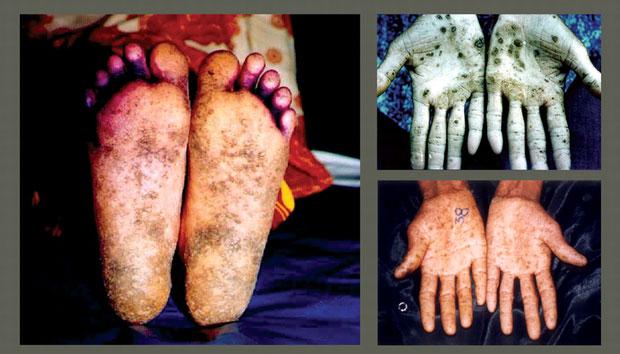 Hấp thụ với lượng aflatoxin ở mức 20mg, con người có thể chết một cách tức tưởi.