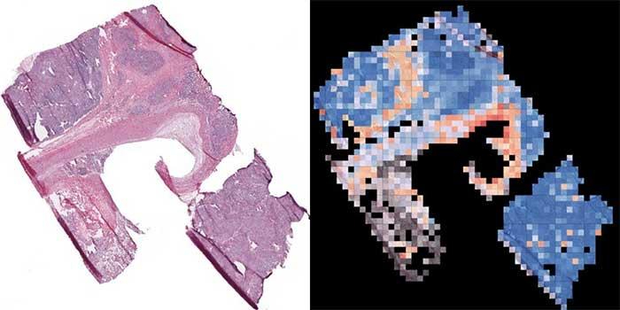 Trí tuệ nhân tạo phân tích một tế bào ung thư và tìm ra phương pháp điều trị hiệu quả nhất.