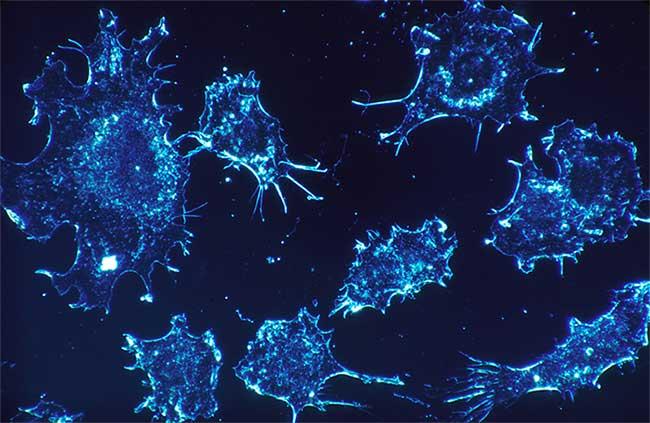 Gene ung thư