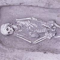 Hài cốt 5.000 năm tuổi mắc hội chứng lùn hiếm gặp