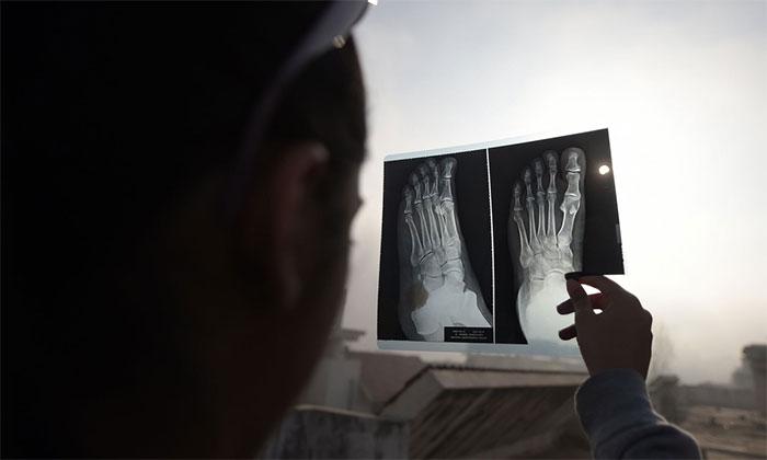 Một bé gái sử dụng tấm giấy chụp x quang như một tấm lọc để quan sát hiện tượng nhật thực.
