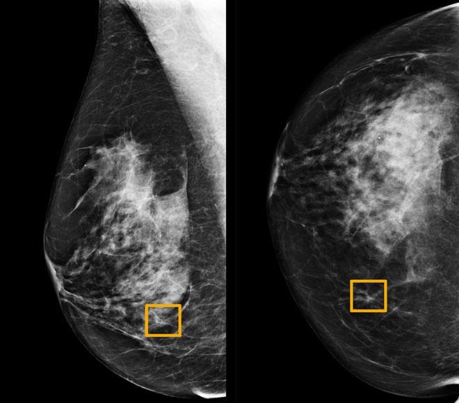 Ô vàng là nơi mà hệ thống trí tuệ nhân tạo cho rằng có ung thư vú.