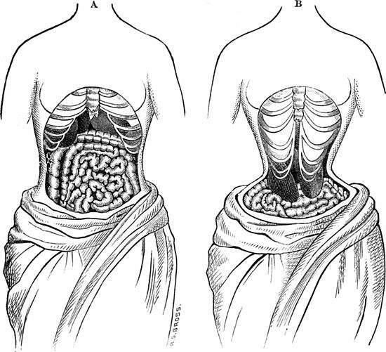 Mặc áo nịt bụng có thể khiến nội tạng bị lệch khỏi vị trí ban đầu.