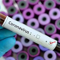 Australia tuyên bố đột phá trong việc kiềm chế virus corona