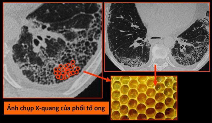 Ảnh chụp X-quang của phổi tổ ong
