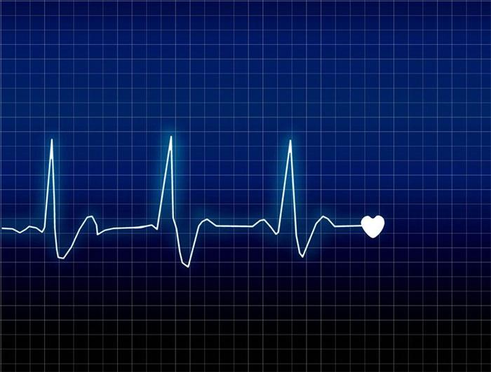 Có rất nhiều nguyên nhân dẫn đến tình trạng rối loạn nhịp tim.