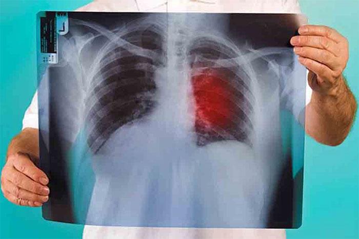 """Chữa trị ung thư phổi bằng phương pháp """"làm sạch"""" các khối u từ các cơ quan trong cơ thể ở giai đoạn đầu"""