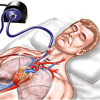 ECMO là gì? Khi nào bệnh nhân cần can thiệp ECMO?