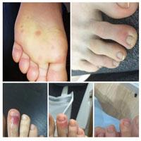Phát hiện triệu chứng mới ở bàn chân người mắc Covid-19