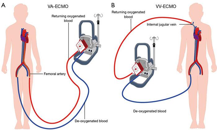 Quá trình trao đổi oxy qua màng ngoài cơ thể.