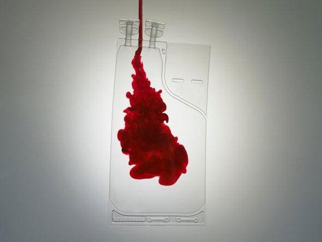 Máu nhiễm khuẩn là nguyên nhân gây tử vong hàng đầu trong các tai nạn truyền máu.