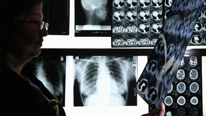 Unanimous AI tạo ra công cụ giúp giảm tỷ lệ sai sót khi chẩn đoán bệnh qua X quang.