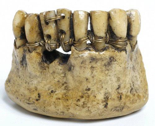 Người xưa lấy răng của binh sĩ tử trận để làm răng giả.