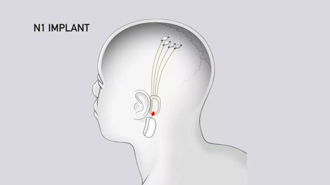 Con chip đặt trong não có thể đem lại cách nghe nhạc hoàn toàn mới.