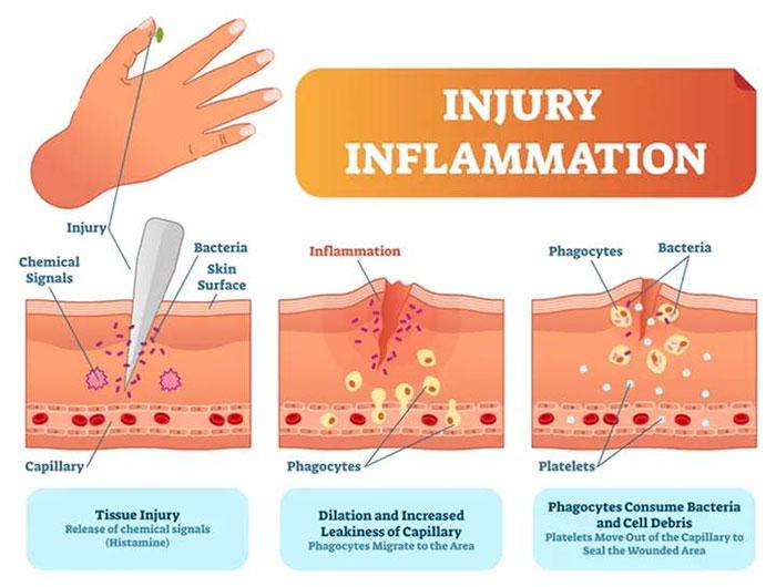 Quá trình kích hoạt phản ứng viêm gây ra bởi mầm bệnh.